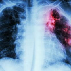 Les preuves sur la tuberculose