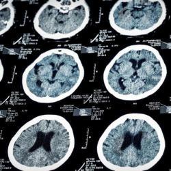 Les preuves sur l'imagerie médicale